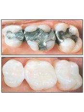 Fillings - Dental Line