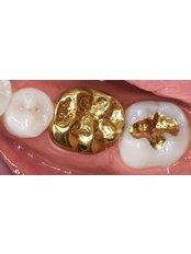 Gold Crown - Dental Line