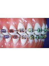 Braces - Dental Line