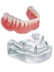 4 implant O-ring lower overdenture - Dentalperiogroup