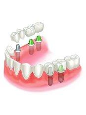 Implant Bridge - Dentalperiogroup