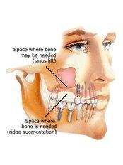 Sinus Lift - Dentalperiogroup