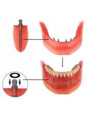 Mini Dental Implants - Dentalperiogroup
