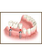 3-Unit Bridge - Dentalperiogroup