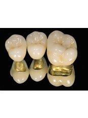 Dental Crowns - Dentalperiogroup