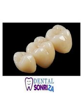 Porcelain Bridge - Dental Sonriza