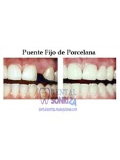 Dental Bridges - Dental Sonriza