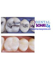 Fillings - Dental Sonriza