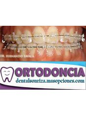 Ceramic Braces - Dental Sonriza
