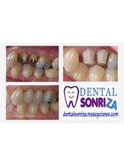 Dental Crowns - Dental Sonriza