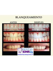 Teeth Whitening - Dental Sonriza