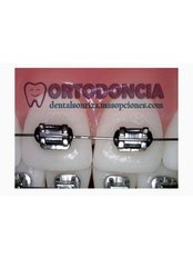 Metal Braces - Dental Sonriza