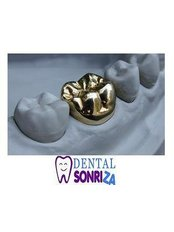 Gold Crown - Dental Sonriza