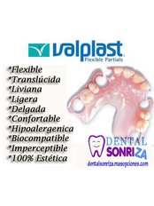 Flexible Partial Dentures - Dental Sonriza