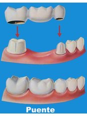 Dental Bridges - Aqua Dental