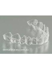 Orthodontic Retainer - Aqua Dental