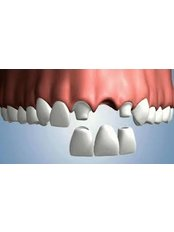3-Unit Bridge - Aqua Dental