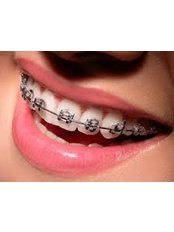 Metal Braces - Aqua Dental