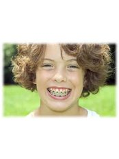 Child Braces - Aqua Dental