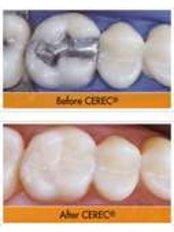 White Filling - CAD/CAM Cosmetic Technology, Dental Artistry Dental Center
