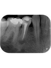 Premolar Root Canal - CAD/CAM Cosmetic Technology, Dental Artistry Dental Center