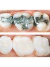 Porcelain Filling - CAD/CAM Cosmetic Technology, Dental Artistry Dental Center