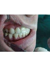 Dental Bonding - CAD/CAM Cosmetic Technology, Dental Artistry Dental Center