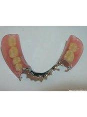 Removable Partial Dentures - CAD/CAM Cosmetic Technology, Dental Artistry Dental Center