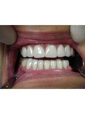 Veneers - CAD/CAM Cosmetic Technology, Dental Artistry Dental Center
