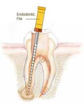 Root canals - CAD/CAM Cosmetic Technology, Dental Artistry Dental Center