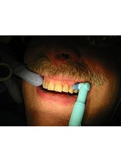 Teeth Cleaning - CAD/CAM Cosmetic Technology, Dental Artistry Dental Center