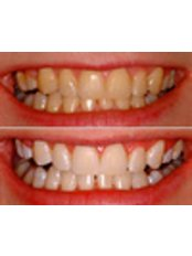 Zoom! Teeth Whitening - CAD/CAM Cosmetic Technology, Dental Artistry Dental Center