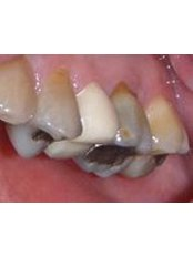 Temporary Crown - CAD/CAM Cosmetic Technology, Dental Artistry Dental Center