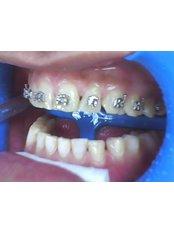 Adult Braces - CAD/CAM Cosmetic Technology, Dental Artistry Dental Center