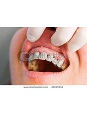 Fixed Partial Dentures - CAD/CAM Cosmetic Technology, Dental Artistry Dental Center