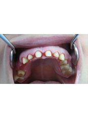 Permanent Crown - CAD/CAM Cosmetic Technology, Dental Artistry Dental Center