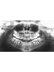 Panoramic Dental X-Ray - CAD/CAM Cosmetic Technology, Dental Artistry Dental Center