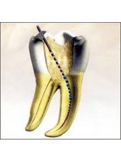 Molar Root Canal - CAD/CAM Cosmetic Technology, Dental Artistry Dental Center