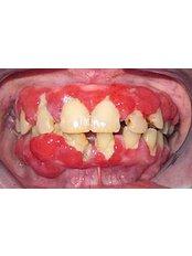 Periodontitis Treatment - CAD/CAM Cosmetic Technology, Dental Artistry Dental Center