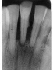 Traditional Dental X-Ray - Cosmetic Dentist in Nuevo Progreso Dental Artistry