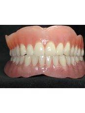 Acrylic Dentures - Cosmetic Dentist in Nuevo Progreso Dental Artistry