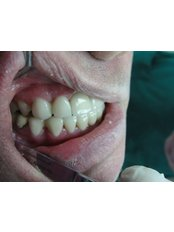 Dental Bonding - Cosmetic Dentist in Nuevo Progreso Dental Artistry