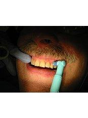 Teeth Cleaning - Cosmetic Dentist in Nuevo Progreso Dental Artistry