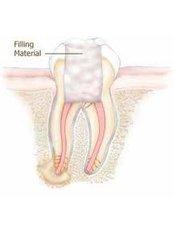 Temporary Filling - Cosmetic Dentist in Nuevo Progreso Dental Artistry