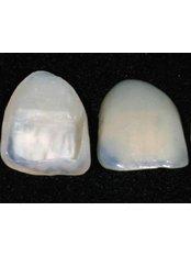 Porcelain Veneers - Cosmetic Dentist in Nuevo Progreso Dental Artistry