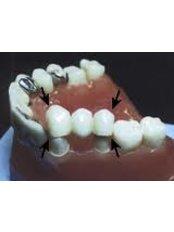 Permanent Bridge - Cosmetic Dentist in Nuevo Progreso Dental Artistry