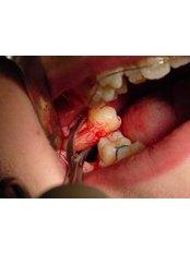 Extractions - Cosmetic Dentist in Nuevo Progreso Dental Artistry