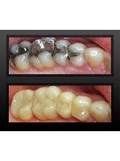 White Filling - Cosmetic Dentist in Nuevo Progreso Dental Artistry