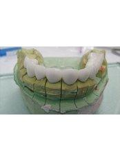 Zirconia Crown - Cosmetic Dentist in Nuevo Progreso Dental Artistry
