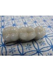 Porcelain Bridge - Cosmetic Dentist in Nuevo Progreso Dental Artistry